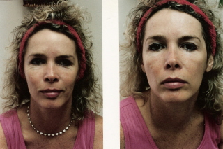 Before and after under eyes Myopulse Facial